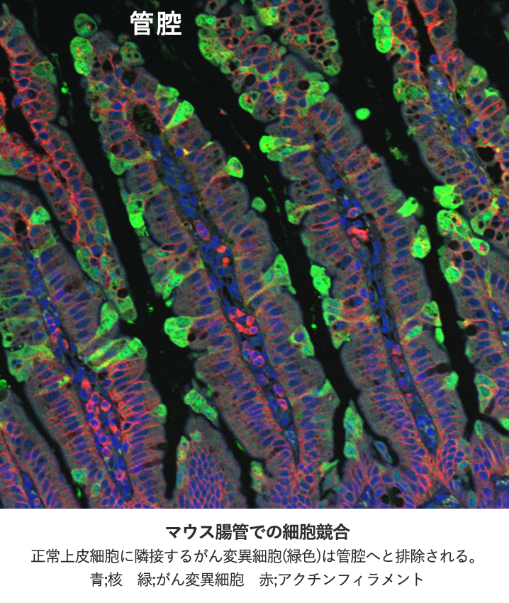 マウス腸管での細胞競合